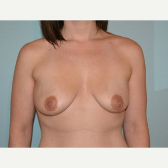Breast augmentation with 245cc Natrelle Gel Anatomically-Shaped implants before 2217725