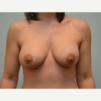 Breast augmentation with 245cc Natrelle Gel Anatomically-Shaped implants after 2217725