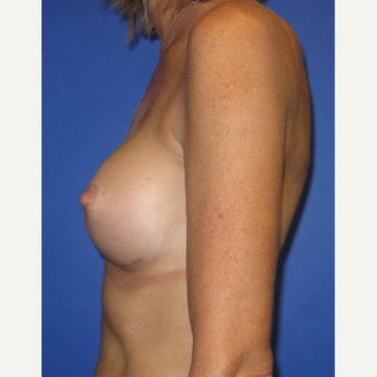 35-44 year old woman treated with Breast Implants (371cc) after 3098484