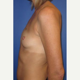35-44 year old woman treated with Breast Implants (371cc) before 3098484