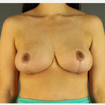 35-44 year old woman treated with Breast Reduction after 3103833