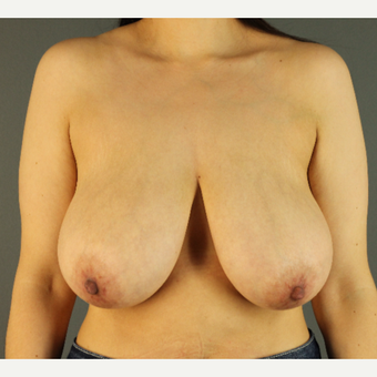 35-44 year old woman treated with Breast Reduction before 3103833