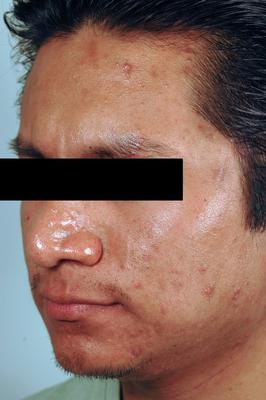 Brown Acne Scars.  Remove Acne Scars with Lasers. before 82966