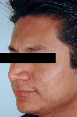 Brown Acne Scars.  Remove Acne Scars with Lasers.