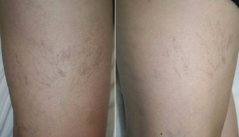 35-44 year old woman treated with Sclerotherapy before 1853557