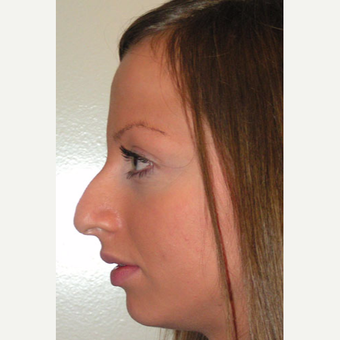 25-34 year old woman treated with Rhinoplasty before 3499848