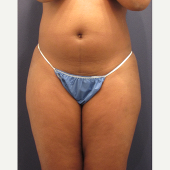 25-34 year old woman treated with Liposuction before 3287326
