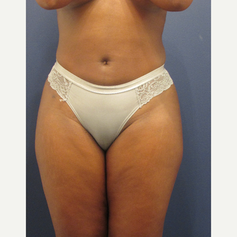 25-34 year old woman treated with Liposuction after 3287326