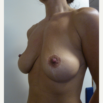 45-54 year old woman treated with Breast Implant Revision before 3428435