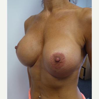 45-54 year old woman treated with Breast Implant Revision after 3428435