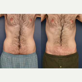 25-34 year old man treated with Male Tummy Tuck before 3699339