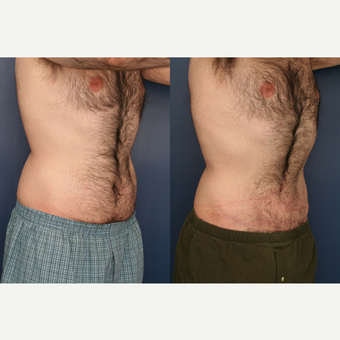 25-34 year old man treated with Male Tummy Tuck after 3699339