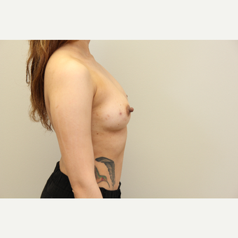 34 year old woman treated with Breast Augmentation before 3699811