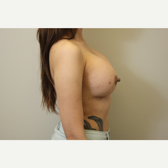 34 year old woman treated with Breast Augmentation after 3699811