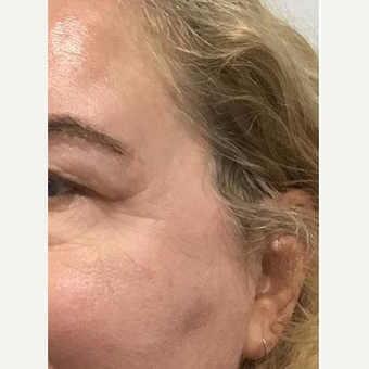 45-54 year old woman treated with Microneedling after 2881617