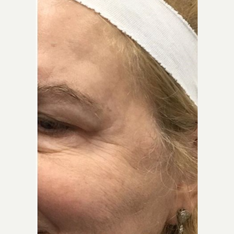 45-54 year old woman treated with Microneedling before 2881617