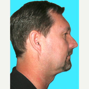 Neck Lift after 3824749