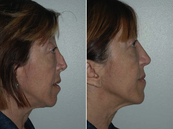 Revision Rhinoplasty after 229629