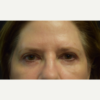 65-74 year old woman treated with Eye Bags Treatment after 3102745