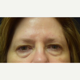 65-74 year old woman treated with Eye Bags Treatment before 3102745