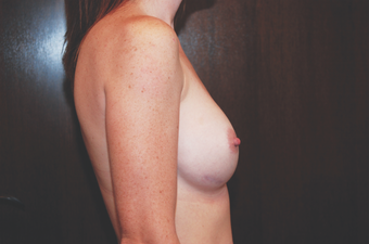 Inspira Breast Implants after 1515946