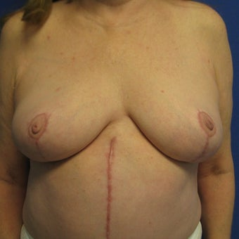 55-64 year old woman treated with Breast Lift after 1978063
