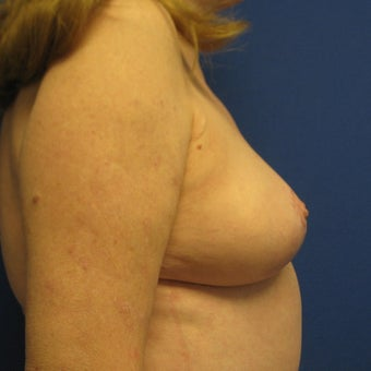 55-64 year old woman treated with Breast Lift 1978063
