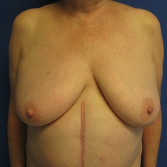 55-64 year old woman treated with Breast Lift before 1978063