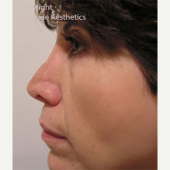 Revision Rhinoplasty before 3005048