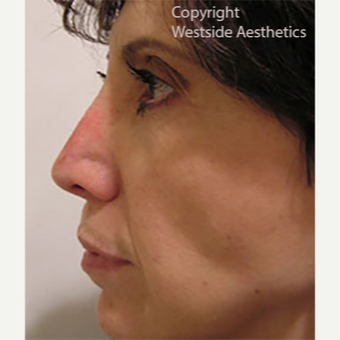 Revision Rhinoplasty after 3005048