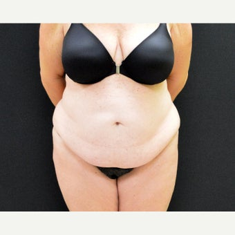 47 year old woman who is 5ft 4in & 190 pounds, after undergoing  Dr. Campanile's CLASS Tummy Tuck before 2442735