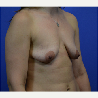 35-44 year old woman treated with Breast Lift with Implants before 3580022