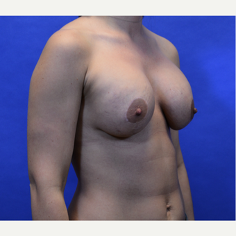 35-44 year old woman treated with Breast Lift with Implants after 3580022