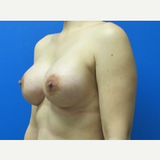 5'2 123lbs Breast Implants 425cc and 450cc after 3371017