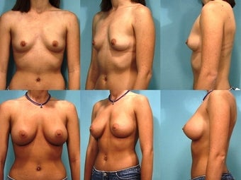 Breast Augmentation before 124501