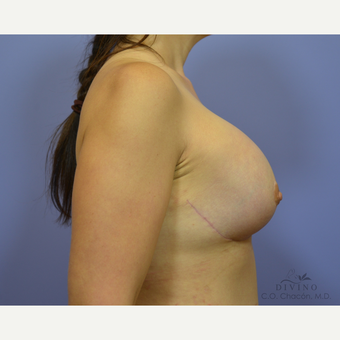 35-44 year old woman treated with Breast Lift with Implants after 3419883