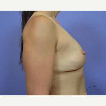 35-44 year old woman treated with Breast Lift with Implants before 3419883