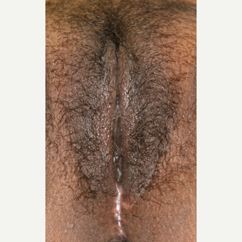 25-34 year old woman treated with Laser Vaginal Rejuvenation after 2810627