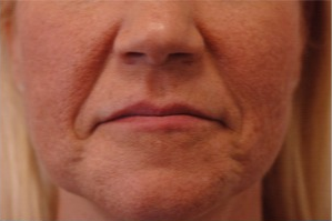 45-54 year old woman treated with Radiesse for Laugh Lines