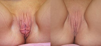 Labiaplasty before 1184697