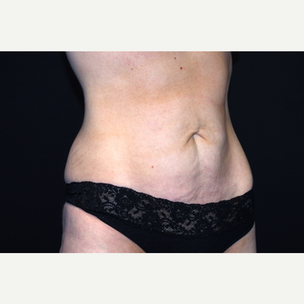 35-44 year old woman treated with Tummy Tuck before 3281018