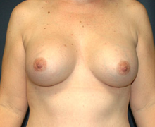 Breast Implants after 3545131