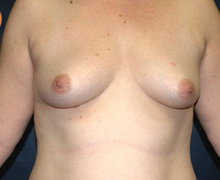 Breast Implants before 3545131