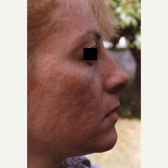 45-54 year old woman treated with Chemical Peel before 3543659