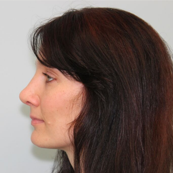 35-44 year old woman treated with Rhinoplasty after 3043178