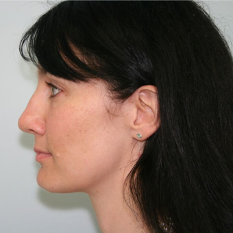 35-44 year old woman treated with Rhinoplasty before 3043178