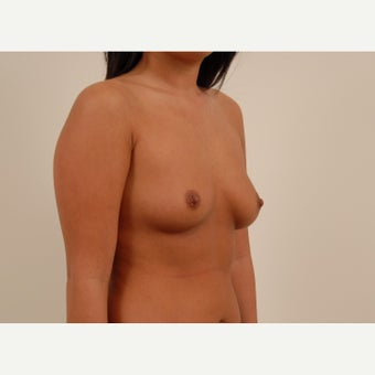 A 33 year old female treated with Breast Augmentation using 360cc shaped silicone gel implants. before 2149757