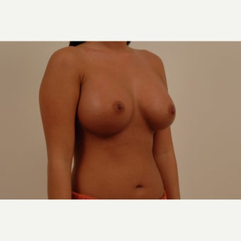 A 33 year old female treated with Breast Augmentation using 360cc shaped silicone gel implants. after 2149757