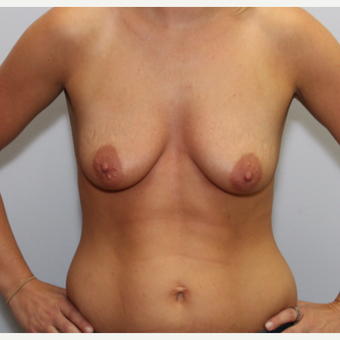 Breast Lift with Augmentation before 3325192