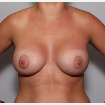 Breast Lift with Augmentation after 3325192
